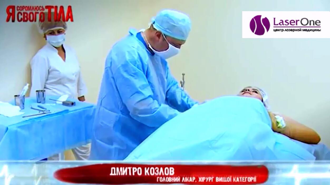 Видео: Лазерное лечение гипергидроза (повышенной потливости).