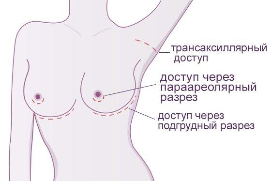 Увеличение груди (маммопластика) в клинике LaserOne фото №2