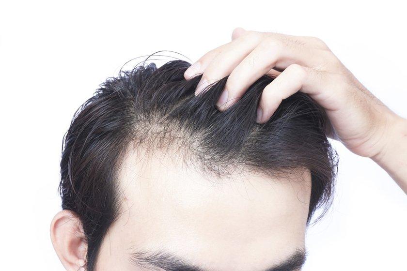 Пересадка волос в клинике LaserOne фото №1