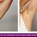 Эпиляция александритовым лазером - фото № 1