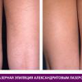 Эпиляция александритовым лазером - фото № 2