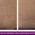 Эпиляция александритовым лазером - фото № 3