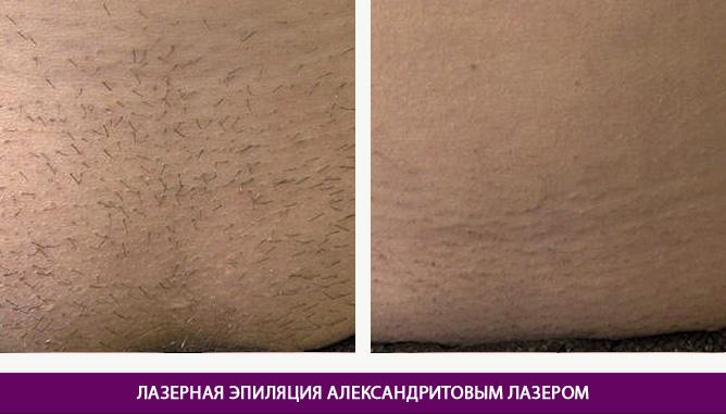 Эпиляция александритовым лазером - фото до и после № 3