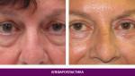 Лазерная блефаропластика (пластика век) - фото до и после №1