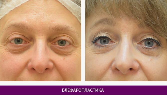 Лазерная блефаропластика - фото до и после № 1