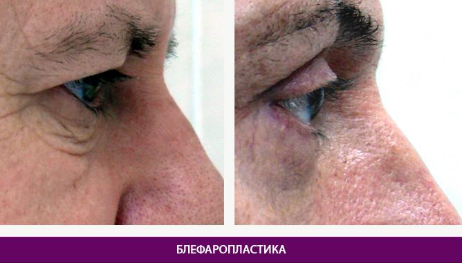 Лазерная блефаропластика - фото до и после № 3