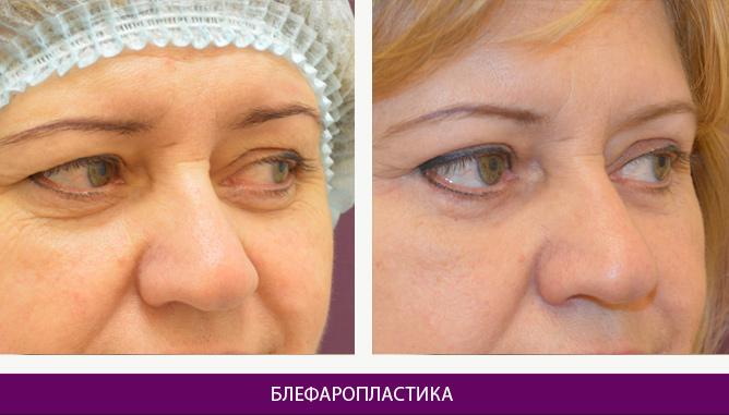 Лазерная блефаропластика - фото до и после № 4