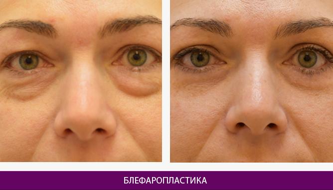 Лазерная блефаропластика - фото до и после № 5