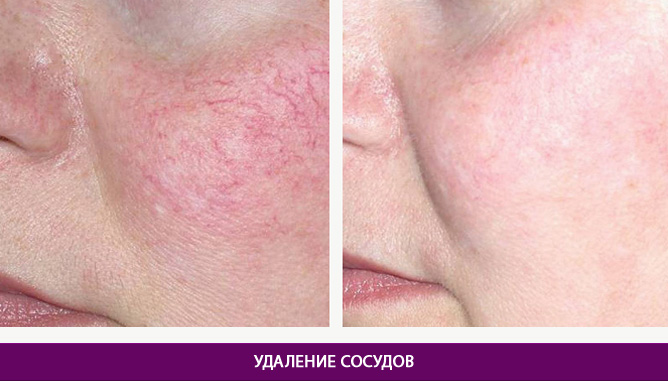 Дерматология и косметология - фото до и после № 1
