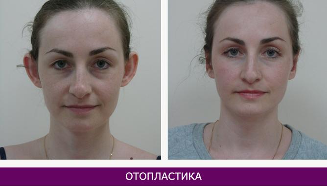 Отопластика (пластика ушных раковин) - фото до и после № 1