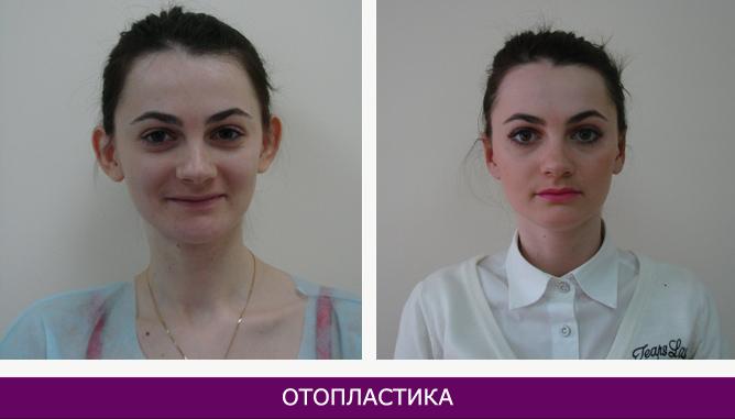 Отопластика (пластика ушных раковин) - фото до и после № 2