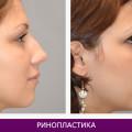 Ринопластика (пластика носа) - фото № 1