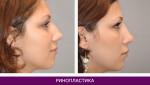 Ринопластика (пластика носа) - фото до и после №1