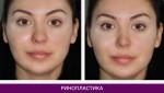 Ринопластика (пластика носа) - фото до и после №5