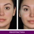 Ринопластика (пластика носа) - фото № 4