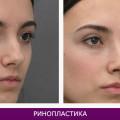 Ринопластика (пластика носа) - фото № 3