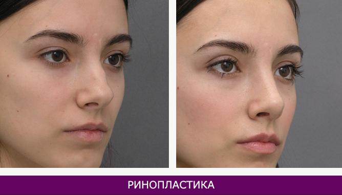 Ринопластика (пластика носа) - фото до и после № 3