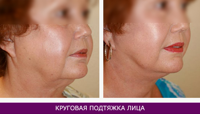 Круговая подтяжка лица - фото до и после № 1
