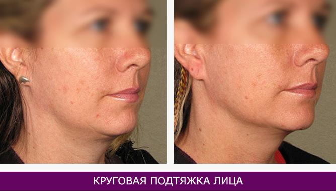 Круговая подтяжка лица - фото до и после № 2
