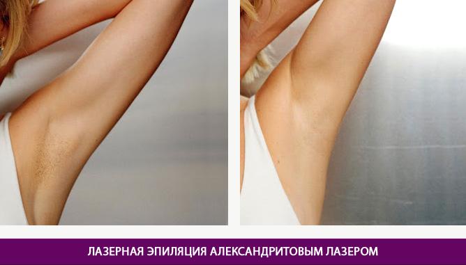 Эпиляция александритовым лазером - фото до и после № 1