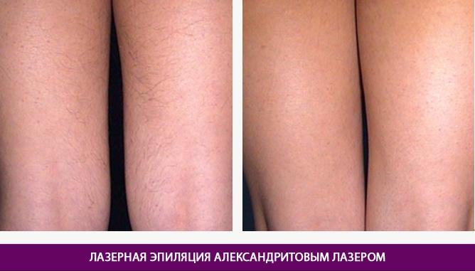 Эпиляция александритовым лазером - фото до и после № 2