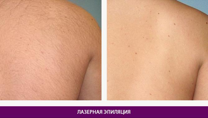 Лазерная эпиляция - фото до и после № 3