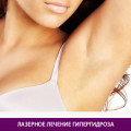 Лазерное лечение гипергидроза - фото № 1