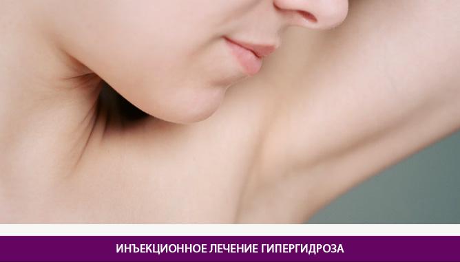 Инъекционное лечение гипергидроза - фото до и после № 1