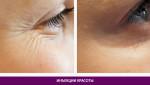 Инъекции красоты - фото до и после №1
