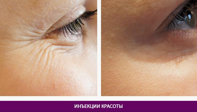 Инъекционные процедуры - фото до и после № 1