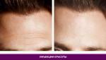 Инъекции красоты - фото до и после №2