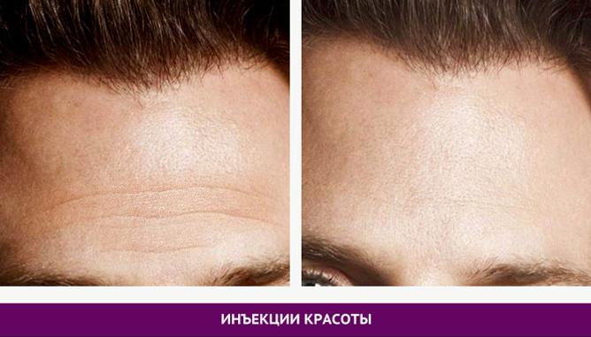 Инъекции красоты - фото до и после № 2