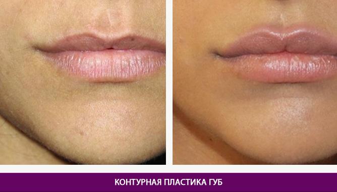 Контурная пластика губ - фото до и после № 1