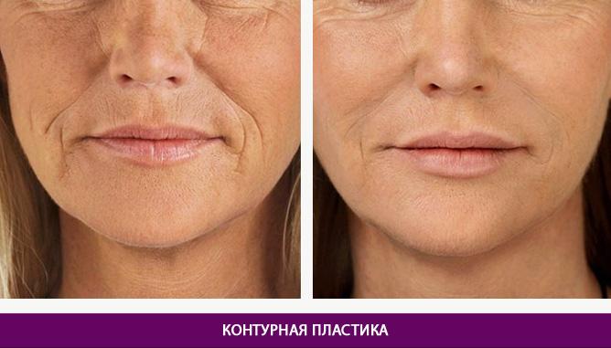 Инъекционные процедуры - фото до и после № 2
