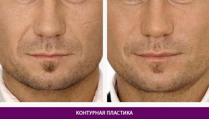 Контурная пластика - фото до и после № 2
