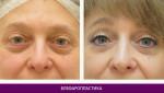 Лазерная блефаропластика (пластика век) - фото до и после №2