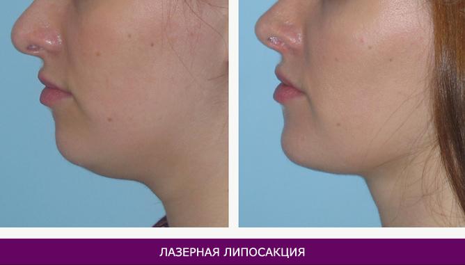 Лазерная липосакция - фото до и после № 3
