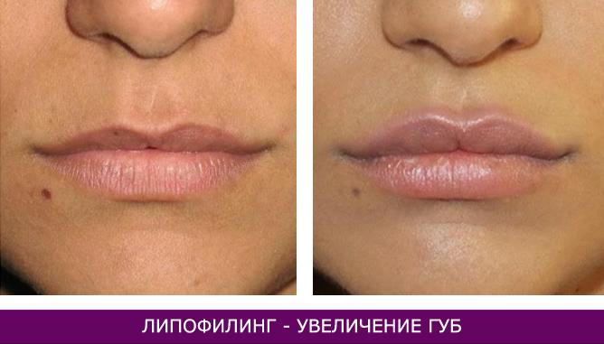 Липофилинг - фото до и после № 1