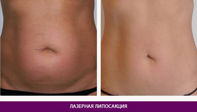Лазерная липосакция - фото до и после № 8