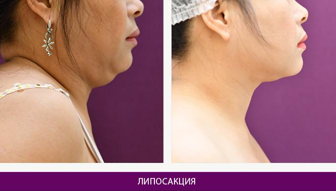 Лазерная липосакция - фото до и после № 5