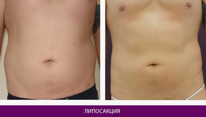 Лазерная липосакция - фото до и после № 7