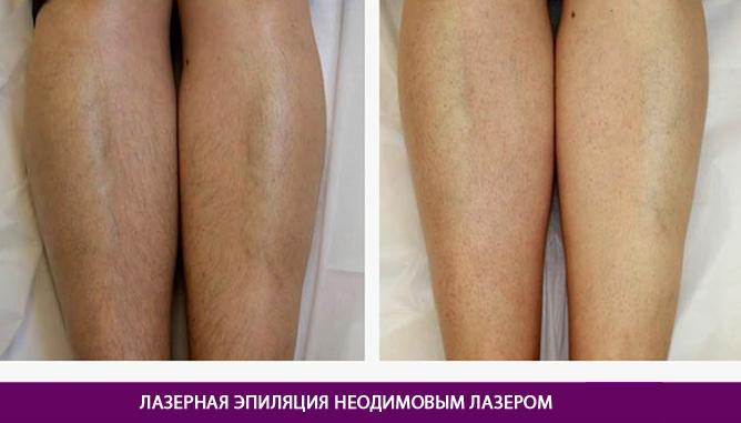 Эпиляция неодимовым лазером - фото до и после № 2