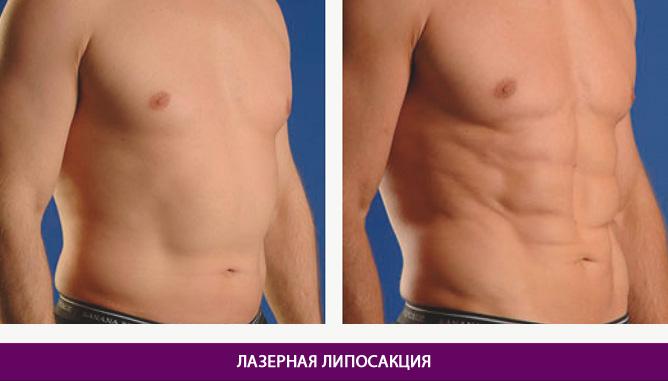 Лазерная липосакция - фото до и после № 2