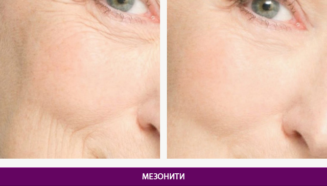 Мезонити - фото до и после № 1