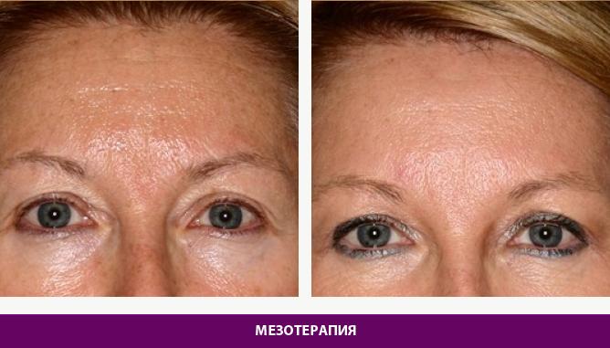 Мезотерапия - фото до и после № 1