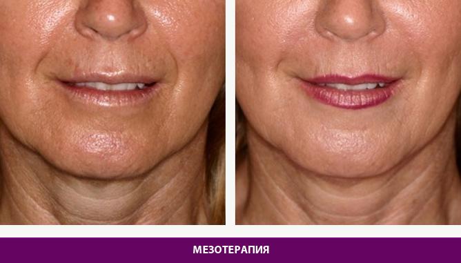 Мезотерапия - фото до и после № 2