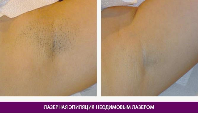 Эпиляция неодимовым лазером - фото до и после № 1