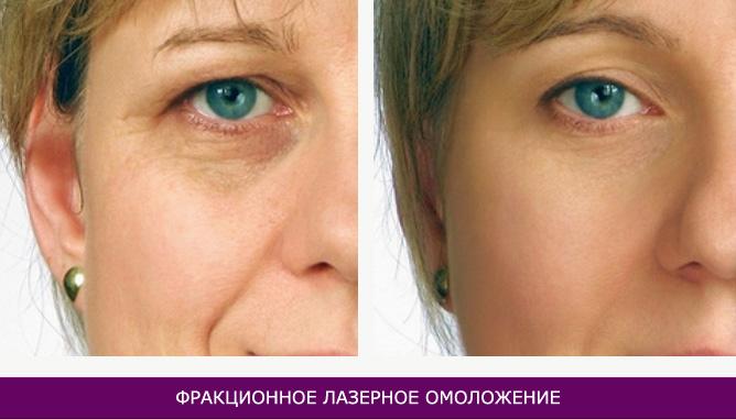 Фракционное лазерное омоложение - фото до и после № 2