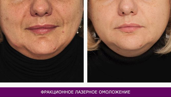 Фракционное лазерное омоложение - фото до и после № 3