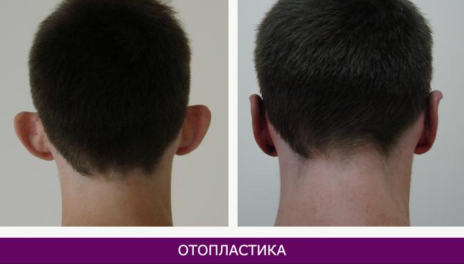 Отопластика (пластика ушных раковин) - фото до и после № 3